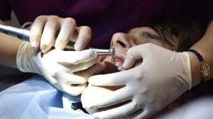 intervention d'un parodontologue
