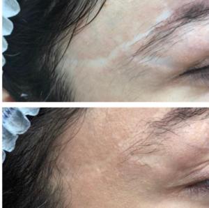 Dermochromatic Repair, ou comment réparer la peau par la couleur !