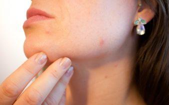 10 des meilleurs remèdes naturels pour l'acné et les boutons. acné