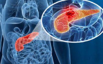 10 signes du cancer du pancréas, que vous devez surveiller.
