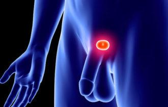 La Clinique Drevon propose un nouveau traitement des cancers localisés de la prostate.