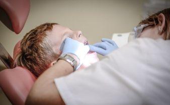 4 questions pertinentes sur la pose d'implant dentaire.