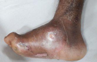 Pied de Charcot : Symptômes, Causes, Traitement, Complications.