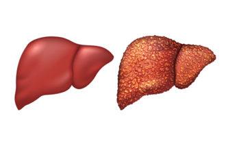 Cirrhose: incidence, symptômes et traitement.