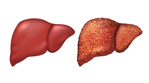 Cirrhosis: incidence, symptoms and treatment.  - Well-Being For ...