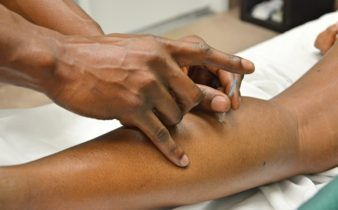 Acupuncture pour soulager la douleur chronique