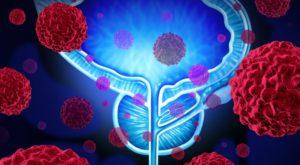 Comment réduire naturellement les risques de cancer de la prostate