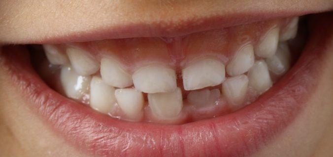 Comment garder votre bouche et vos dents en bonne santé