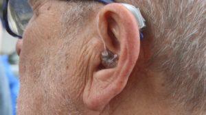 Prothèse auditive: savoir détecter quand elle devient indispensable