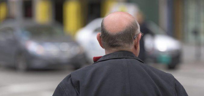 Les différentes solutions suite à la perte de cheveux