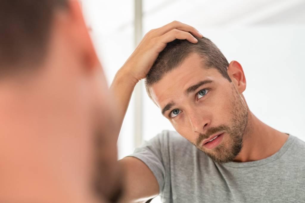 perte cheveux greffe Les différentes solutions suite à la perte de cheveux