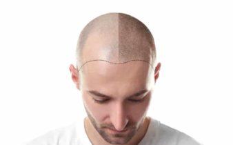 Le tatouage du cuir chevelu pour pallier une calvitie