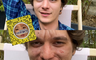 Snapchat, un filtre malin pour prévenir les cancers de la peau