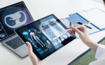 Comment les hôpitaux connectés améliorent-ils le suivi des patients ?