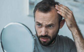 Chute de cheveux : faut-il s'alarmer ?