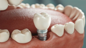 L'hygiène des implants dentaires : est-elle importante ?