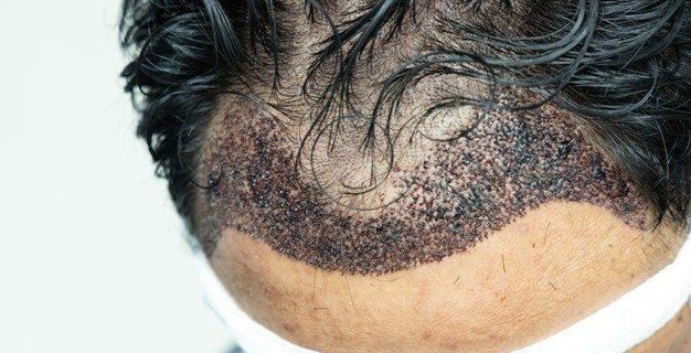 10 choses à savoir sur la greffe de cheveux