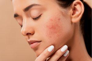 Femme acné