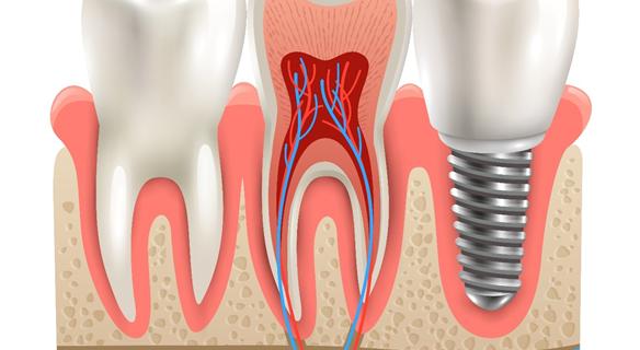 Implant dentaire : le guide complet pour faire le bon choix.